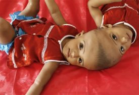 OPERACIJA TRAJALA 30 SATI Razdvojene sijamske blizankinje spojene glavom
