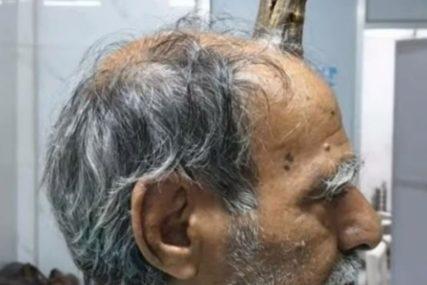 NEVJEROVATNO Muškarcu na glavi izrastao rog, bila neophodna intervencija hirurga (VIDEO)