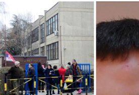 VRŠNJAKA ŠESTAROM UBO U ČELO Majka učenika petog razreda tvrdi da škola ZATAŠKAVA incident