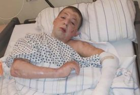 ŽELI ŠTO MANJE OŽILJAKA, DA BUDE LIJEP KAO SLIKA Dječak Meho Beton izdržao 17. operacija