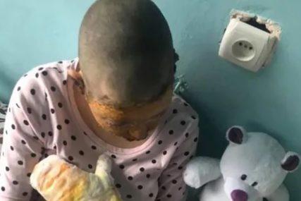 LICE U PLAMENU Usprotivila se ocu kada je krenuo da udari njenu majku i zadobila TEŠKE POVREDE