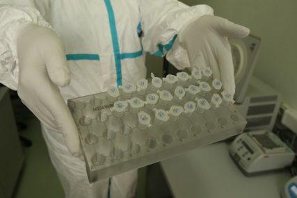 RADI VEĆE DOSTUPNOSTI Naučnici pokušavaju pojednostaviti test za virus, jer je trenutni KOMPLIKOVAN