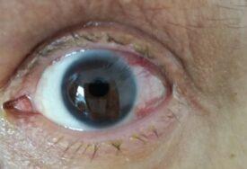 Bura na mrežama nakon poruke oftalmologa: Njegovo saopštenje uklonjeno sa vrata ordinacije, direktor šalje opomenu (FOTO)
