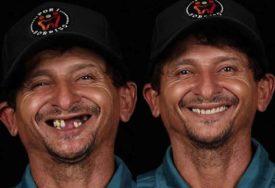 VRAĆA OSMIJEH NA LICE On besplatno popravlja zube siromašnima, transformacije su NESTVARNE (FOTO)