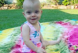 Savjetovali su joj da abortira, odbila je: Lena je na ultrazvuku saznala da joj beba ima ogromnu izraslinu na tijelu (FOTO)