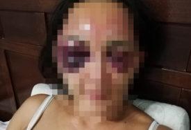 PREŽIVJELA HOROR Suprugu satima tukao, sud ga PUSTIO bez mjera zabrane prilaska žrtvi