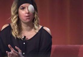 DEČKO JOJ BACIO KISELINU U LICE Manekenka i poslije silnih operacija izgleda OVAKO (VIDEO)