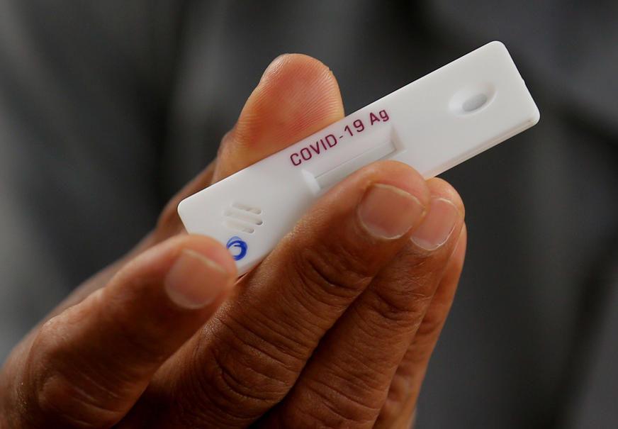 Testirano 1.100 osoba: Čak 68 odsto medicinskih radnika u Srpskoj ima antitijela na korona virus