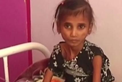 AKUTNO NEUHRANJENA Ima 13 godina i 11 kilograma i samo je jedna od dva miliona djece koji su navikli da budu gladni (VIDEO)