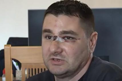 Tvrdi da je povod za napad na nacionalnoj osnovi: Čovjek iz Visokog pretučen na kućnom pragu
