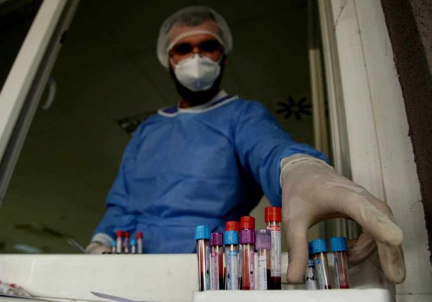 PREMINULA 24 PACIJENTA Korona virus potvrđen kod 576 osoba u Srpskoj