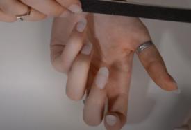 Možda ste preležali koronu, a da ne znate: Promjene na noktima mogu biti uzrokovane virusom