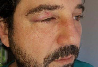 """""""Šokiran sam da me udario zbog lika u seriji"""" Ispred roštiljnice pretučen glumac Miljan Davidović"""