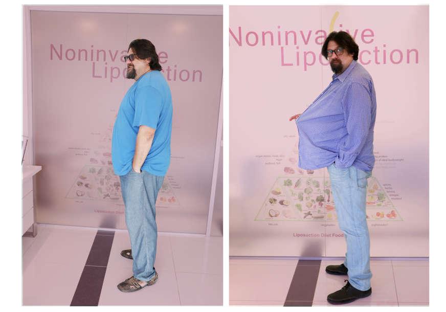Jedina klinički ispitana metoda mršavljenja u Republici Srpskoj: Liposukcijska dijeta za brzo skidanje kilograma (VIDEO)
