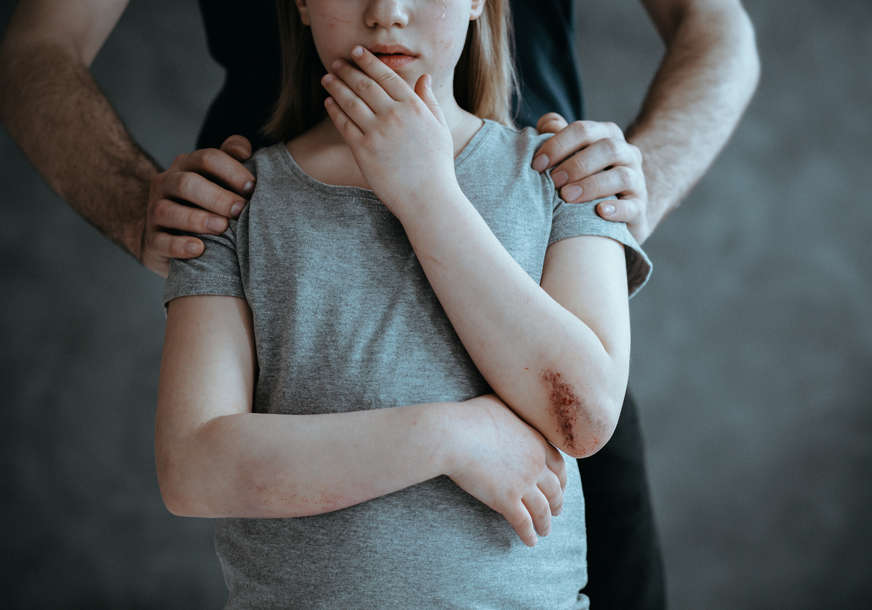 Tužilaštvo podiglo optužnicu protiv OCA MONSTRUMA: Zlostavljao kćerku (14) i nudio joj drogu